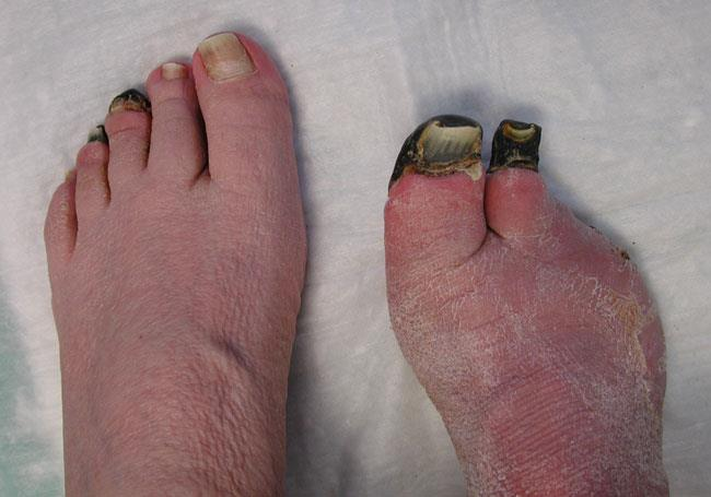 Toes damaged by frostbite