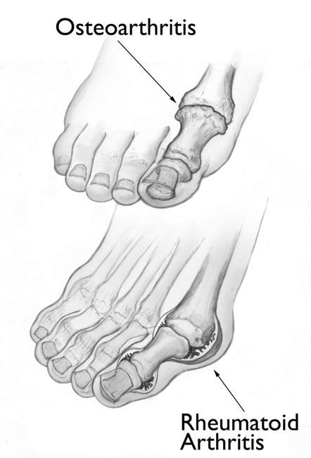 illustrations of osteoarthritis and rheumatoid arthritis of the big toe