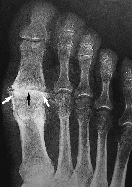 x-ray of osteoarthritis of the metatarsophalangeal joint of the big toe