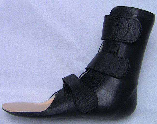 A custom-molded leather brace for ankle and hindfoot arthritis