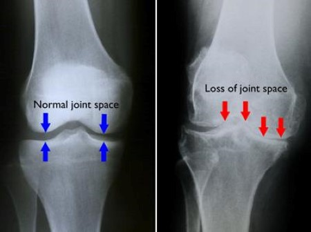 x-rays of normal knee and knee with osteoarthritis