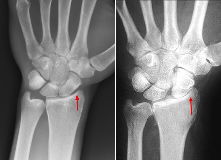 Arthritis Of The Wrist Orthoinfo Aaos