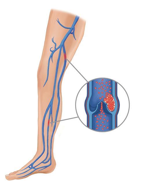 Deep Vein Thrombosis - OrthoInfo - AAOS