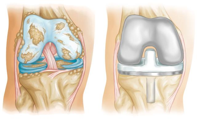 Image result for Knee Replacements