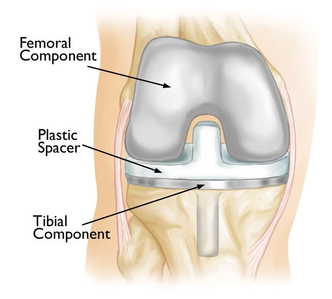 A total knee replacement implant.