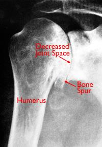 X-ray of severe osteoarthritis of the glenohumeral joint