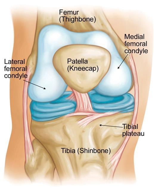 osteonecrosis of the knee orthoinfo aaos