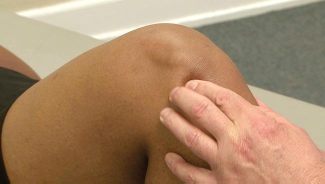 Osteonecrosis of the Knee - OrthoInfo - AAOS