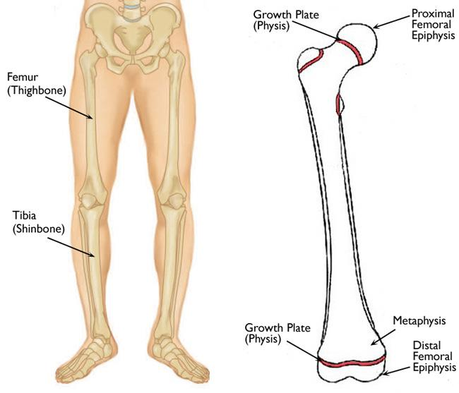 Limb Length Discrepancy - OrthoInfo - AAOS