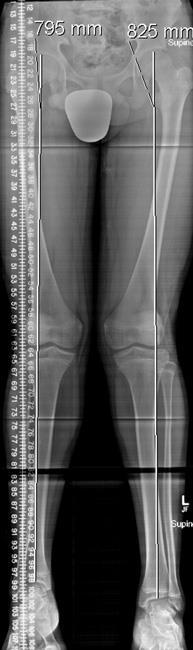 Limb Length Discrepancy - OrthoInfo - AAOS