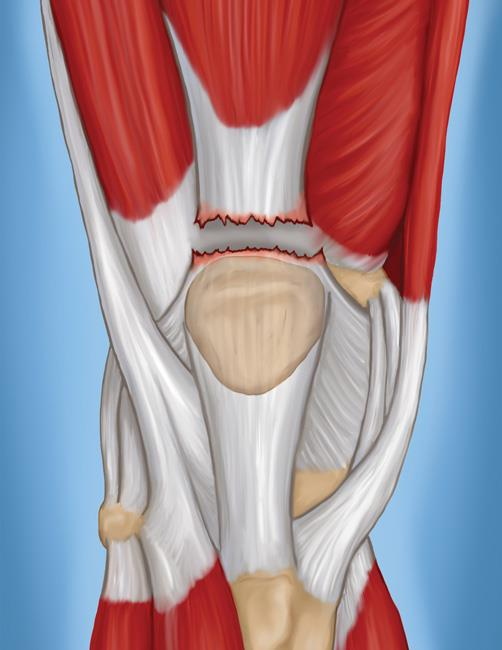 Quadriceps Tendon Tear - OrthoInfo - AAOS
