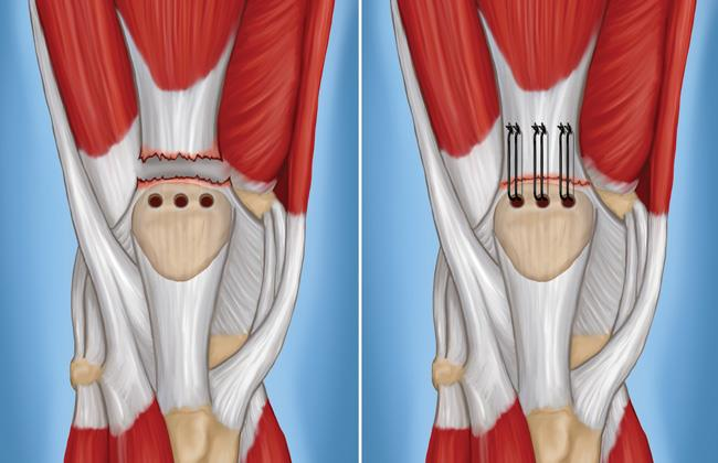 surgery for quadriceps tendon tear
