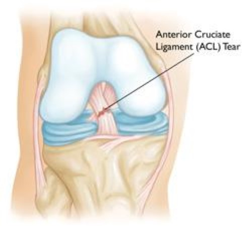 Acl Injury Does It Require Surgery Orthoinfo Aaos
