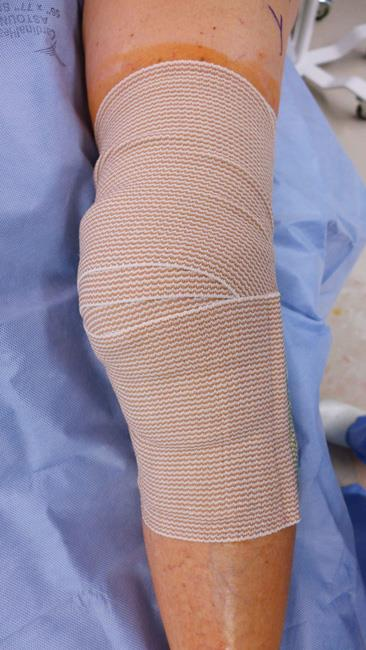 Bandage covering arthroscopic incisions