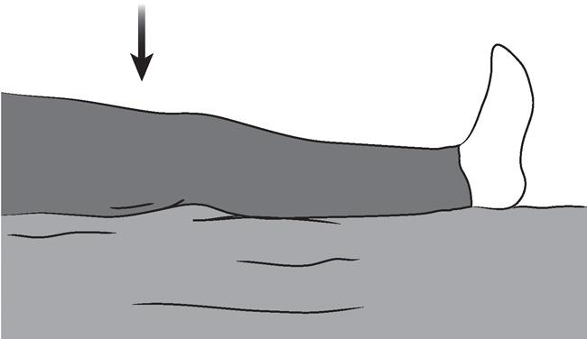 Illustration of quadriceps set