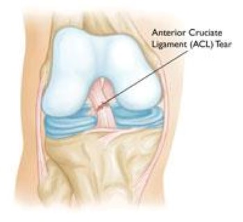 Image result for knee injuries
