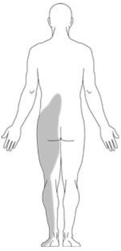 Location of back pain from spinal steonosis
