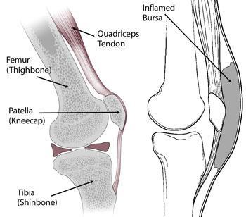 Prepatellar kneecap bursitis orthoinfo aaos normal knee anatomy including the bursa involved in prepatellar bursitis ccuart Gallery