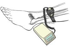 external bone stimulator
