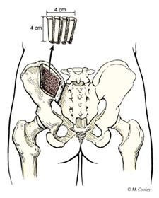 bone graft from pelvis
