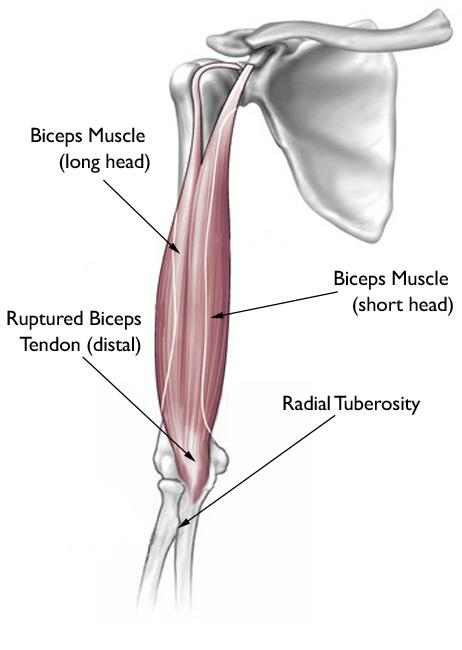 Biceps Tendon Tear at the Elbow - OrthoInfo - AAOS