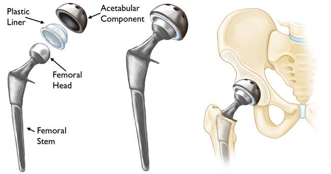 components of a total  hip replacement