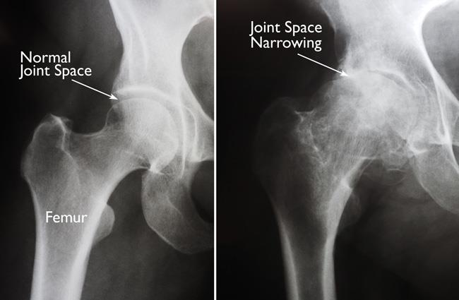 x-rays of normal hip and hip with arthritis