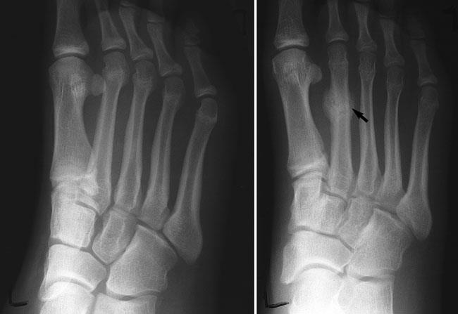 Image result for stress fracture