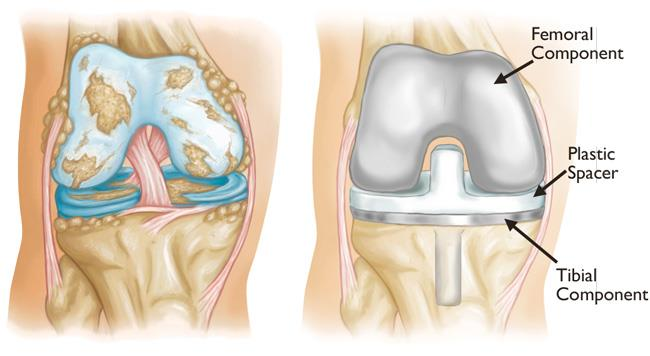 illustrations of severe osteoarthritis and knee replacement