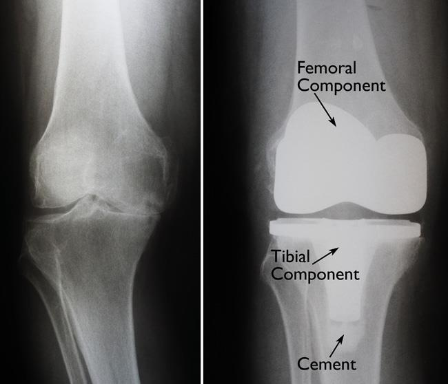 Total Knee Replacement Orthoinfo Aaos