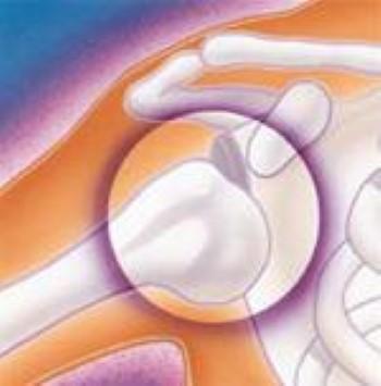 Illustration of shoulder instability