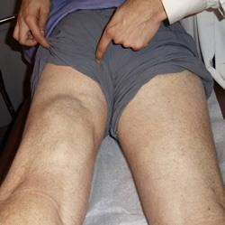 Photo  of patient with severe hamstring injury