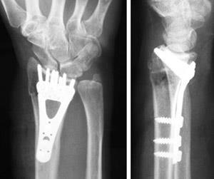 Fracturas Distales Del Radio Muñeca Quebrada Distal Radius Fractures Broken Wrist Orthoinfo Aaos