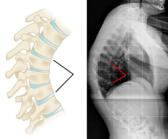 Illustration and x-ray of vertebral wedging