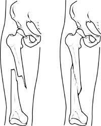 Thighbone fracture