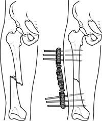 Thighbone fracture treated with external fixation