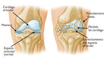 Reemplazo Total De Rodilla Total Knee Replacement