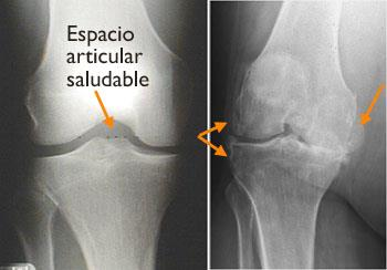 Aaos Reemplazo Knee ReplacementOrthoinfo Total Rodillatotal De KcTlJF1