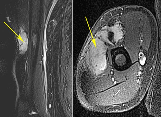 MRI scan of an extra-abdominal desmoid tumor