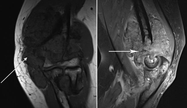 MRI scans of an elbow with PVNS