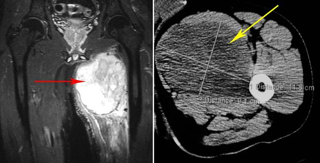 MRI and CT scan of a soft tissue sarcoma
