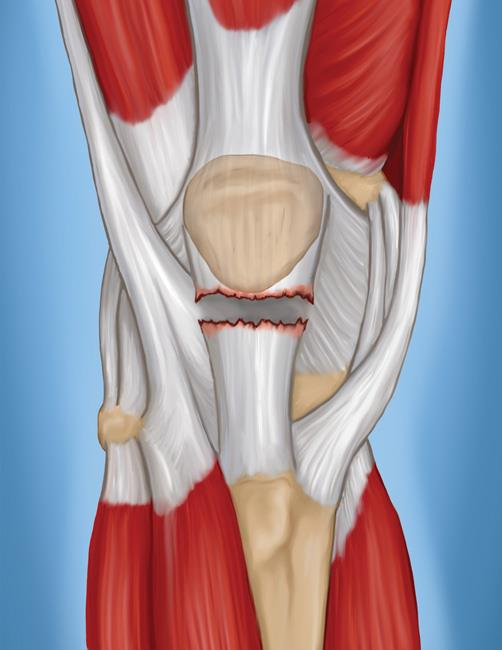 Common knee injuries orthoinfo aaos patellar tendon tear ccuart Gallery