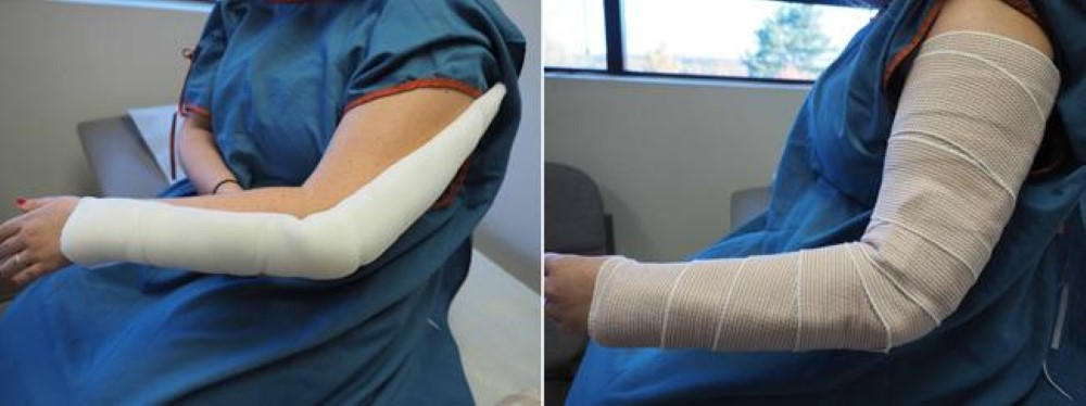 Patient wearing an elbow splint