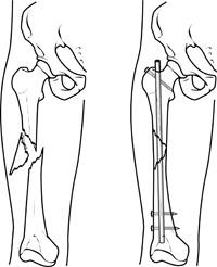 Intramedullary nailing of a femoral shaft fracture