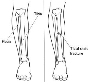 Illustrations of the lower leg and a tibial shaft fracture