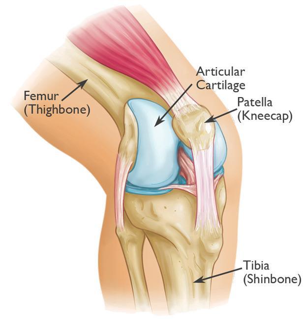 Patellar Fractures Broken Kneecap Orthoinfo Aaos