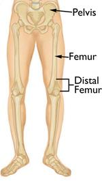 Distal Femur (Thighbone) Fractures of the Knee - OrthoInfo