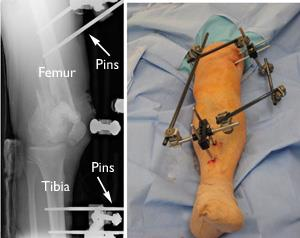 Distal Femur (Thighbone) Fractures of the Knee - OrthoInfo - AAOS