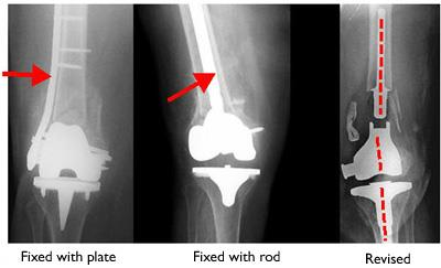 Fractures near artificial knee joint treated with internal fixation and revision knee replacement