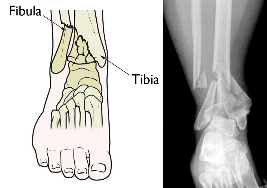 Illustration and x-ray of a pilon fracture